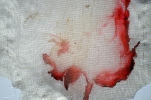 Blood on silk bloodbags 004_edited-1